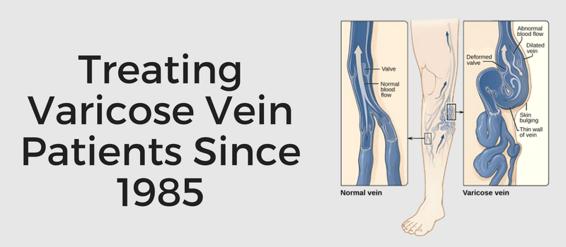 diagram of varicose veins