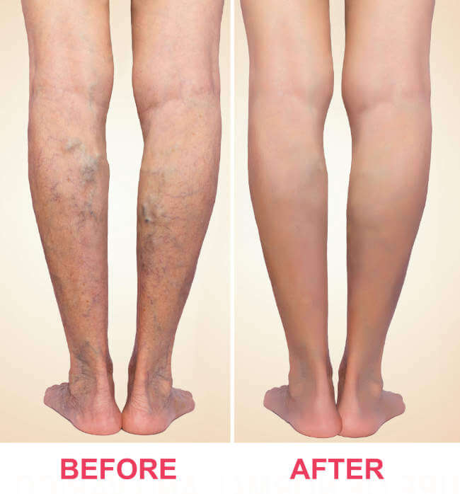 Before After Varicose Veins