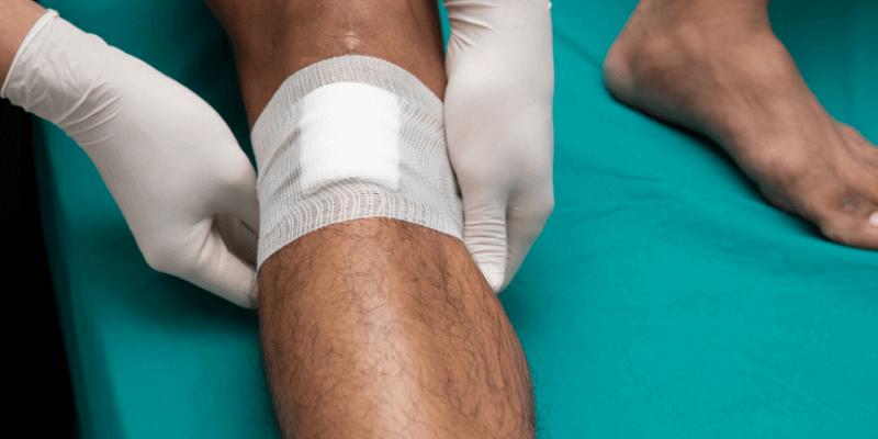 leg ulcer bandage