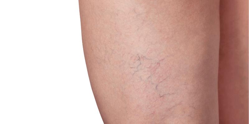 spider vein on thigh